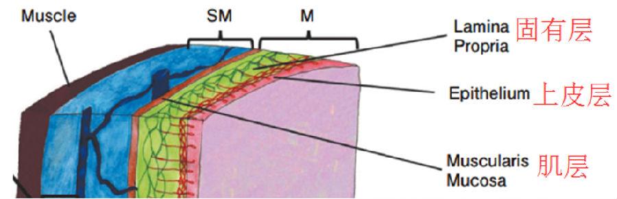 早癌诊断基础 | 食管黏膜层微血管结构表现